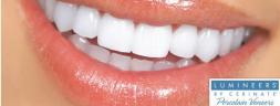 Lumineers Teeth Image