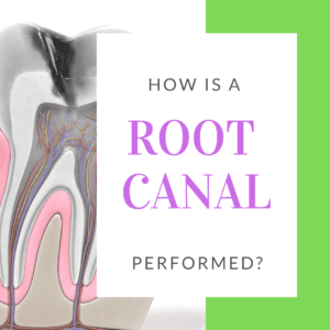 How is a Root Canal Performed_