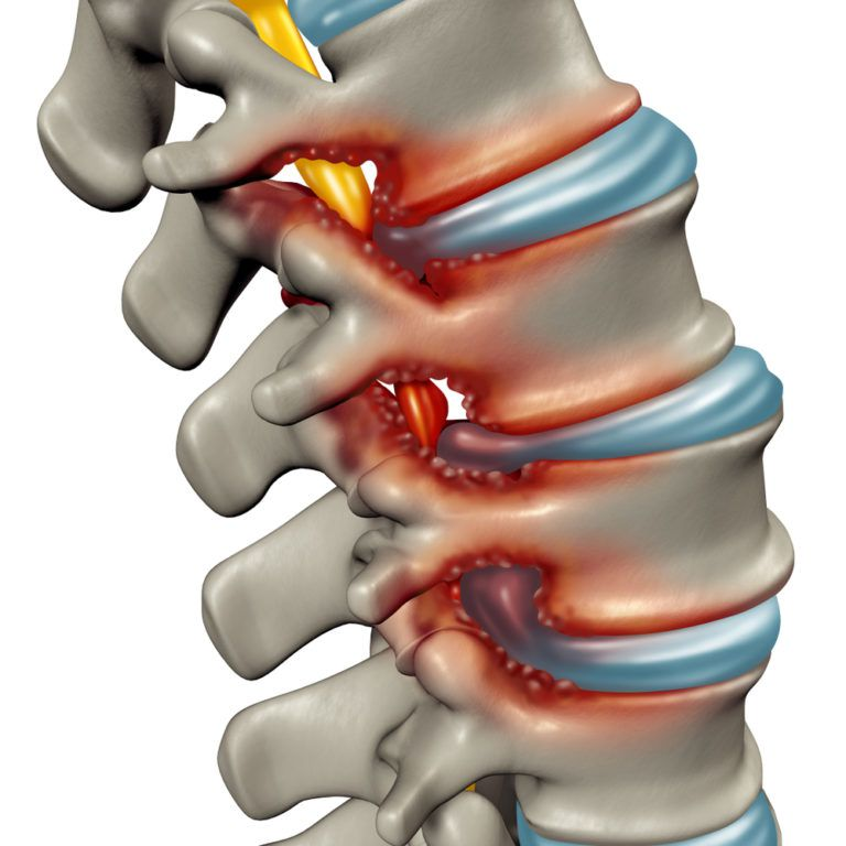 Spinal Stenosis as a degenerative illness in the human vertebrae causing compressed spine nerves