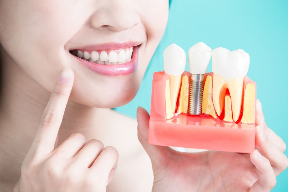 Dental Implants in Gilbert