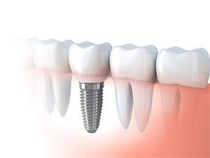 Dental Implants in Mesa, AZ