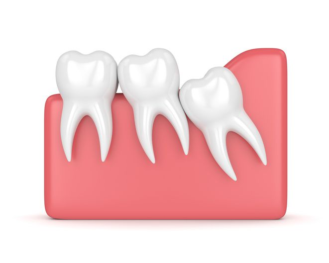 Wisdom Teeth Extractions in Mesa