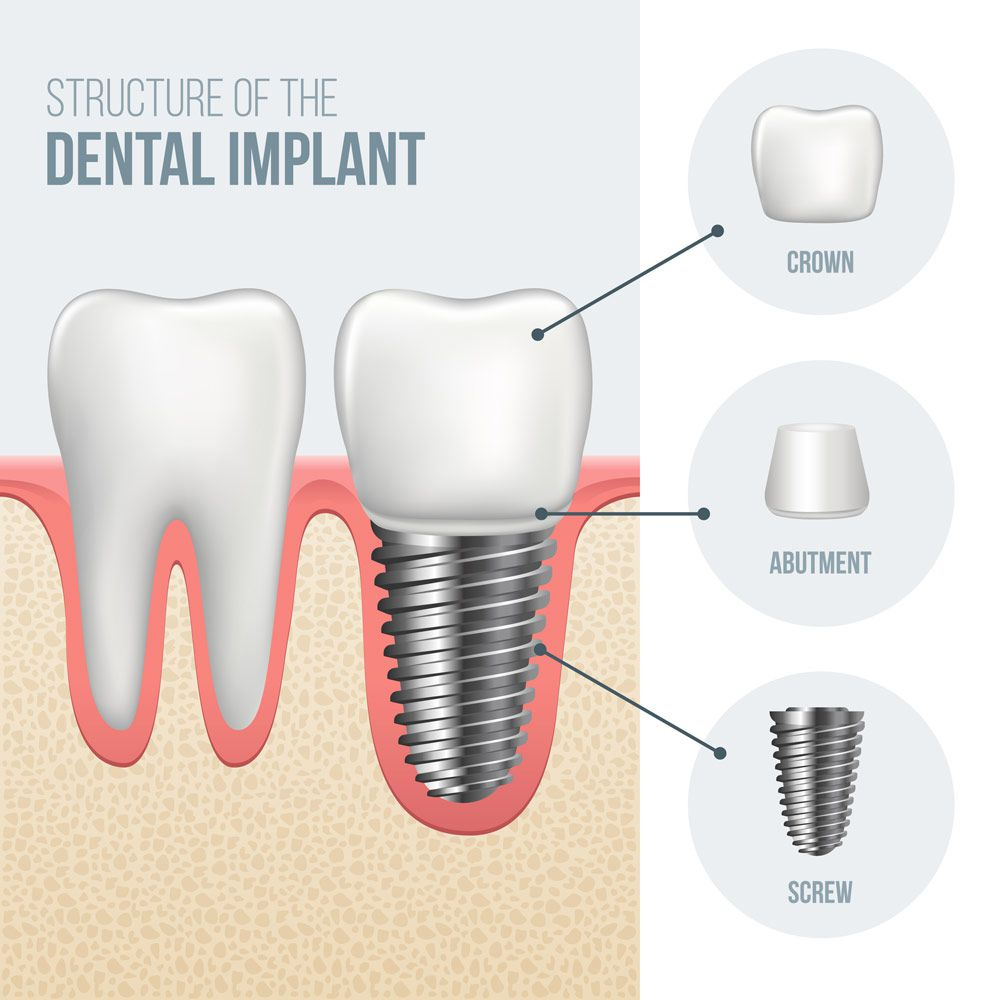 implantes dentales en houston | Best Dental