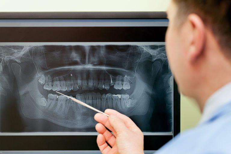 Dental digital x-ray