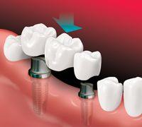 dental crown bridge installation