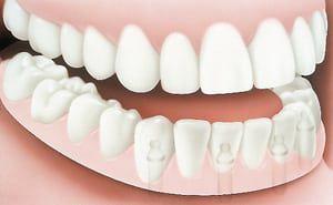 Dentures Implants