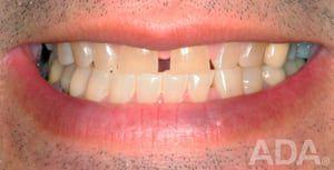 Space in teeth