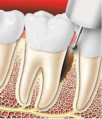 Periodontitis teeth treatment