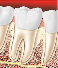 Periodontitis Surgery