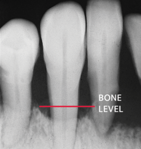 Tooth Radiography