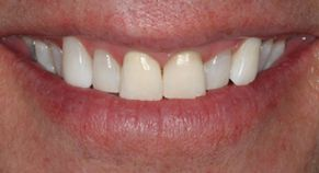 Patient teeth after whitening