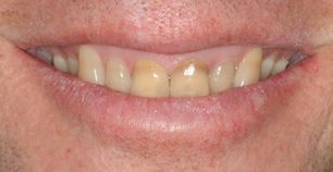 Patient teeth before whitening