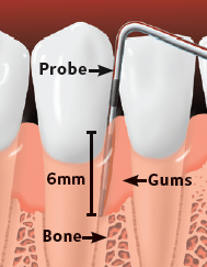Periodontitis teeth