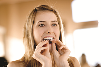 Girl putting invisalign in mouth