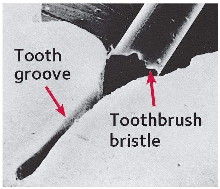Tooth groove and toothbrush Bristle