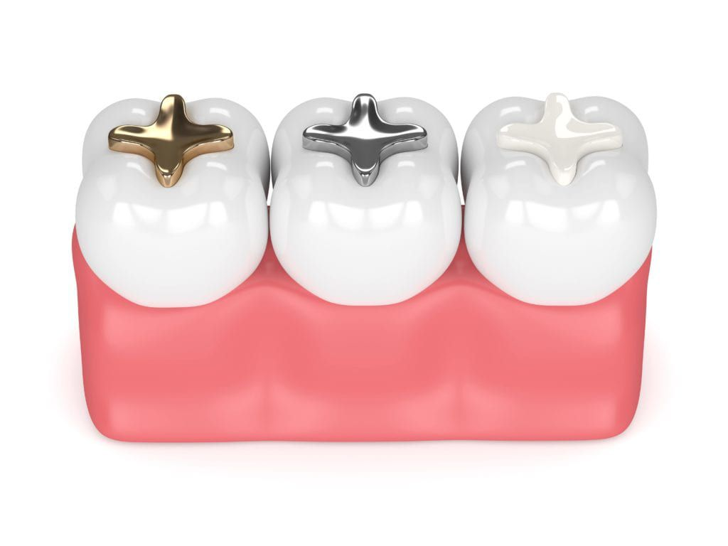 Three types of dental fillings: gold, silver, and composite