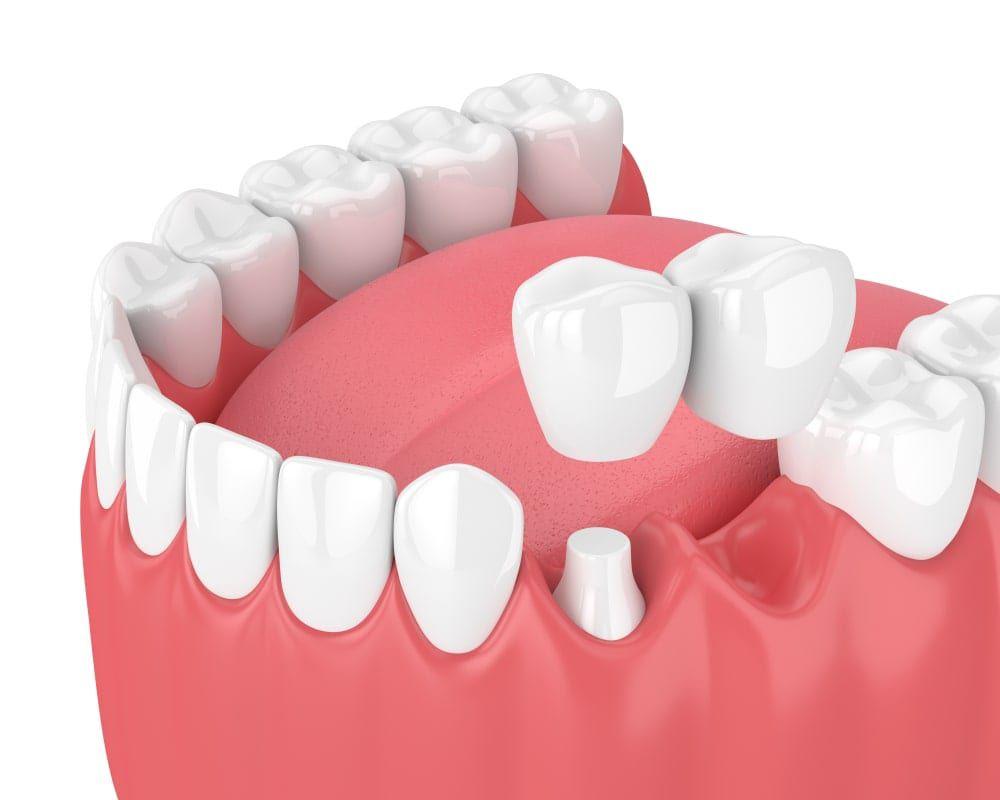Cantilever Dental Bridge