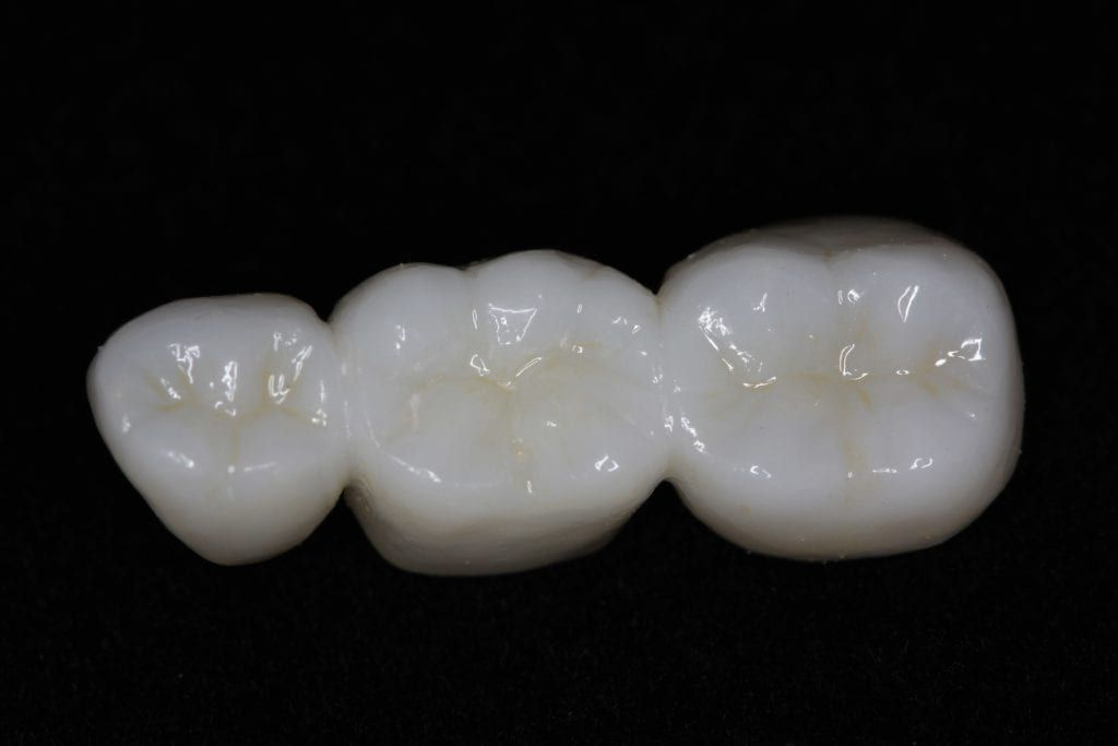 Zirconia crowns shown in a dental bridge