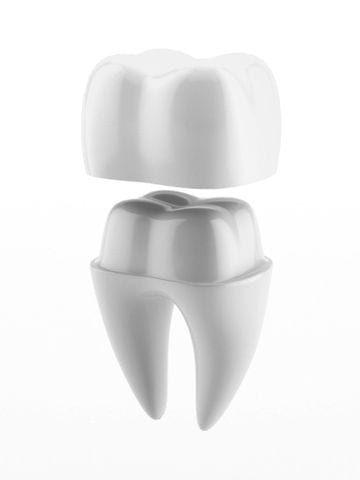 Dental crown model