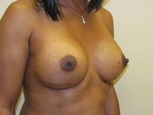 MTF Breast Augmentation Surgery Photos