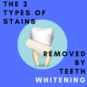 The 2 Types of Stains Removed by Teeth Whitening
