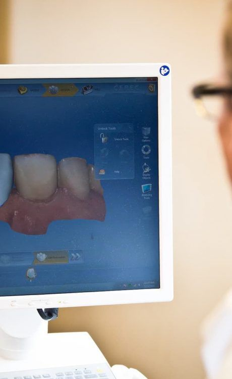 cerec crown molding technology used by dr. haerter