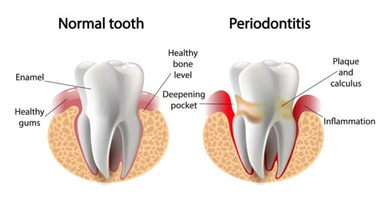 Graphic of a normal tooth and one with Periodontitis, a gum disease