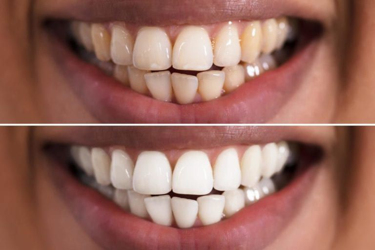 Close up of teeth before and after teeth whitening