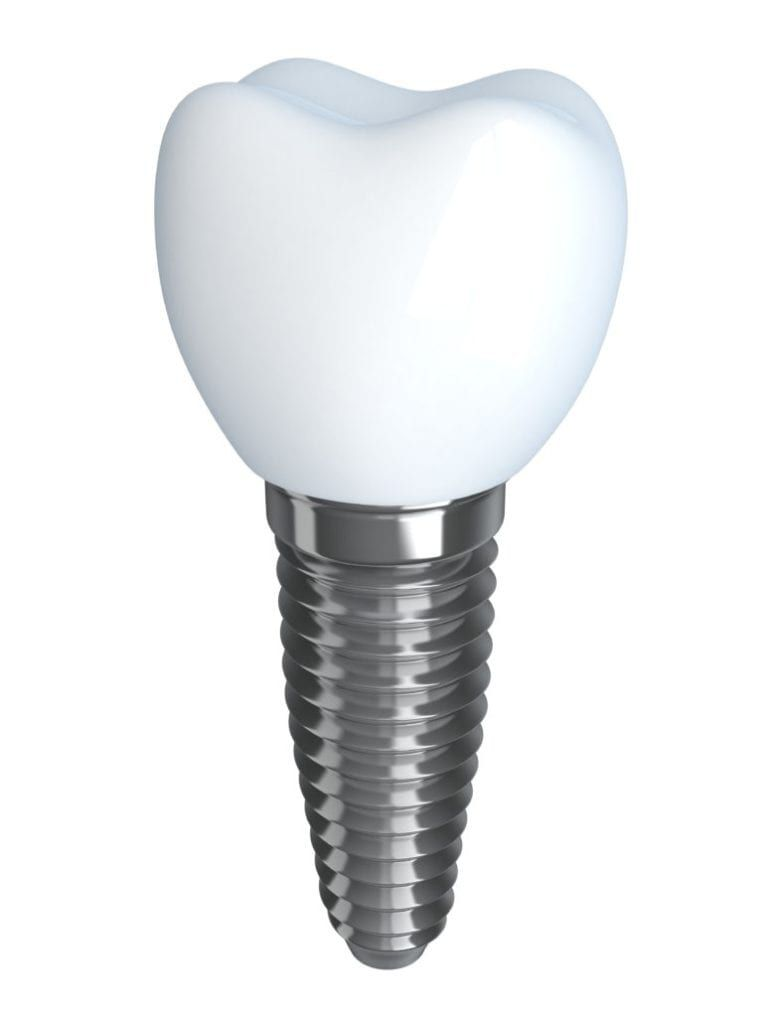 graphic of dental implant