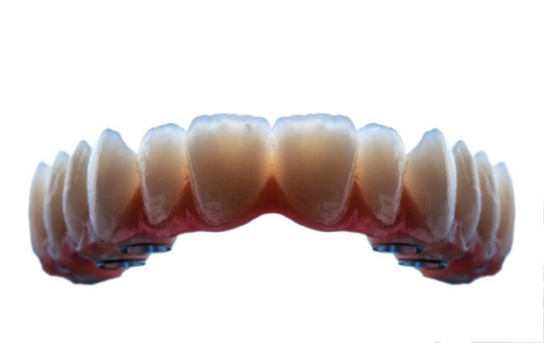 bottom denture implants