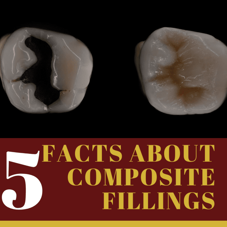 """Infographic for """"5 facts about composite fillings"""""""