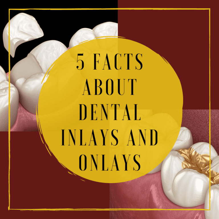 """Infograph for """"5 facts about dental inlays and onlays"""""""