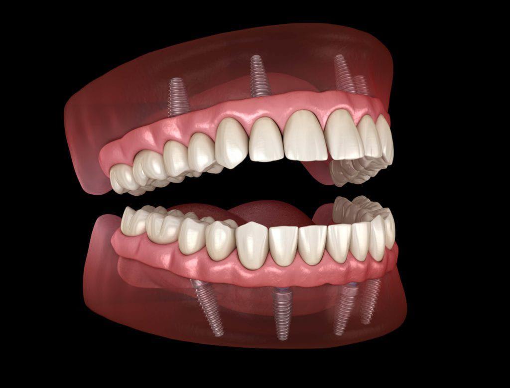 full mouth rehabilitation with implant supported dentures