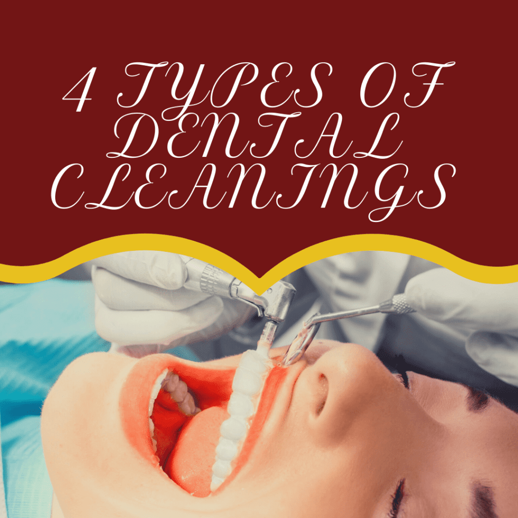 Infographic 4 Types of Dental Cleanings