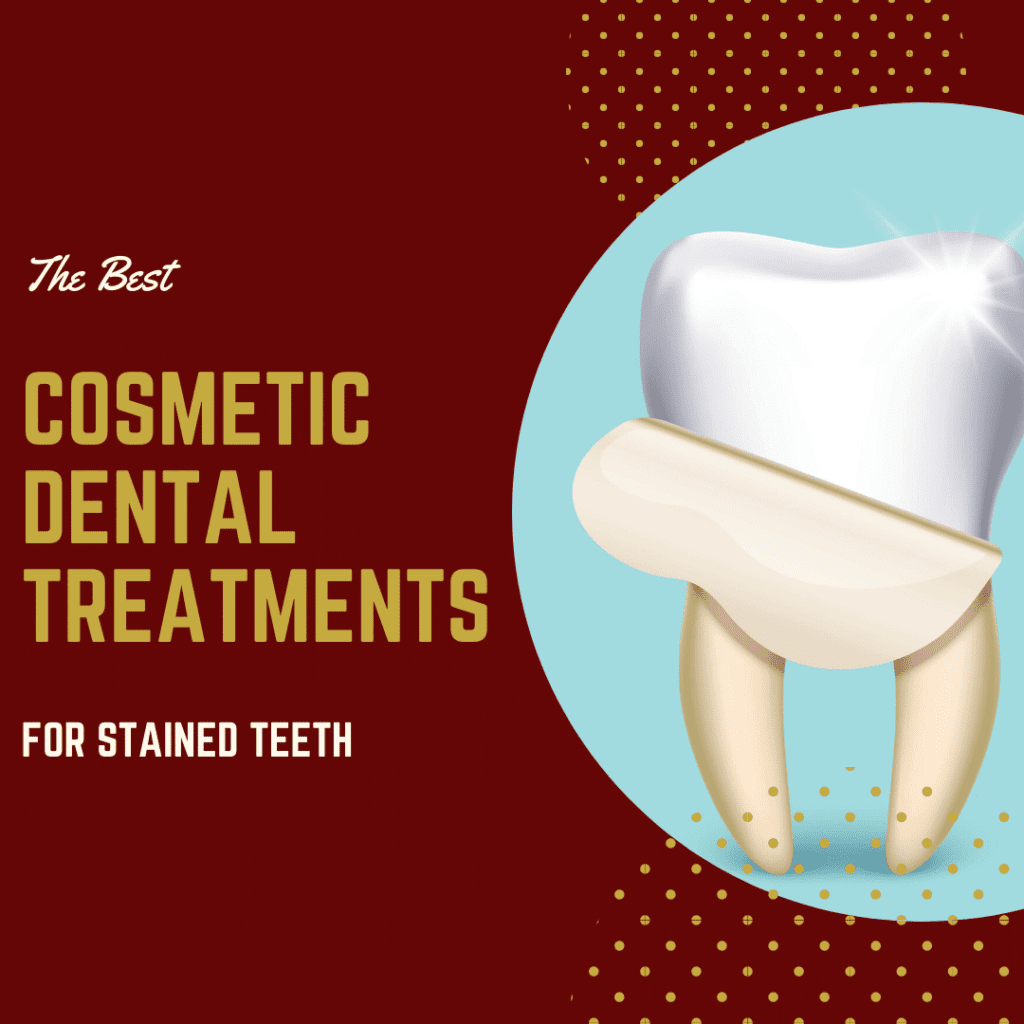 The Best Cosmetic Dental Treatments for Stained Teeth
