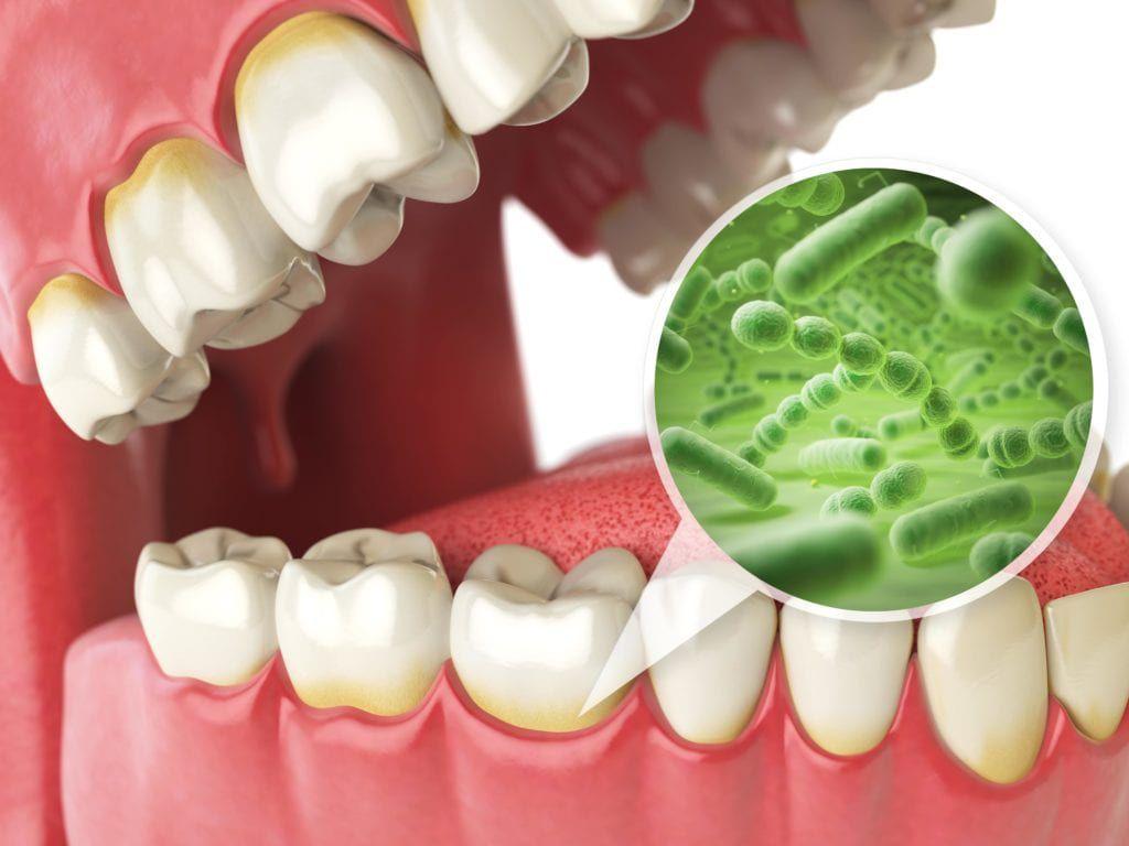 Bacteria buildup on teeth