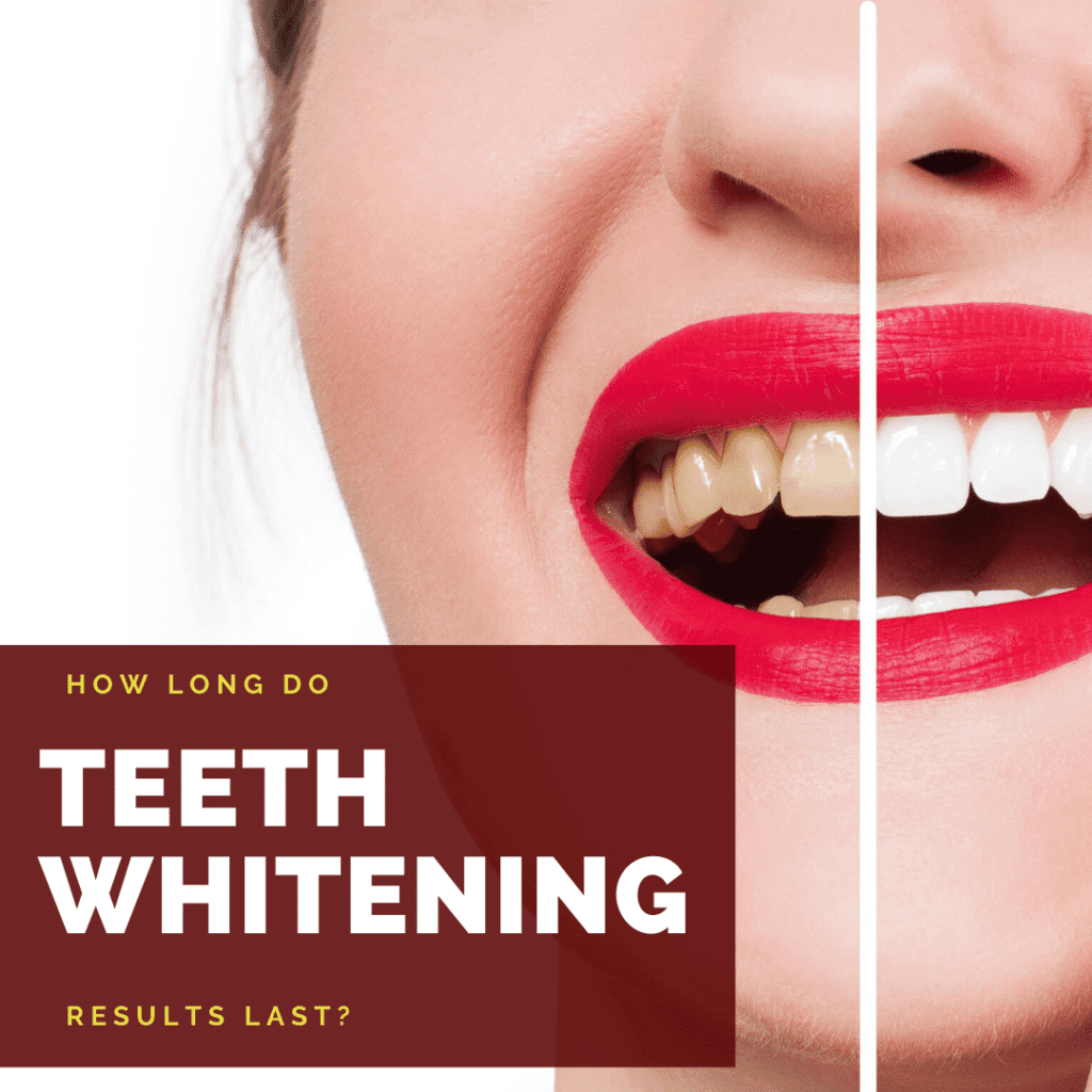 How long do teeth whitening results last