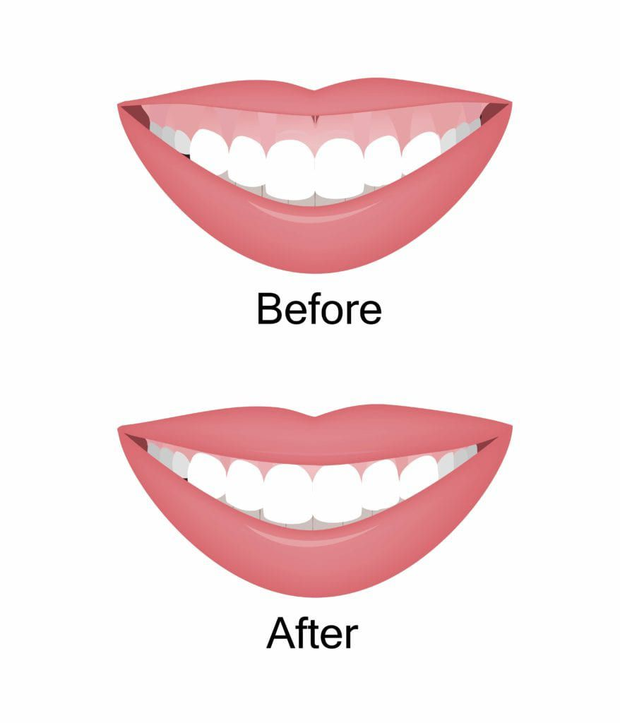 Before and after gum shaping procedure