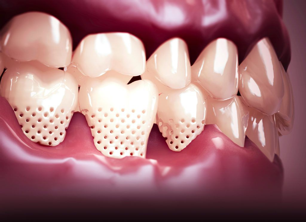 exposed tooth roots shown with holes to explain tooth sensitivity