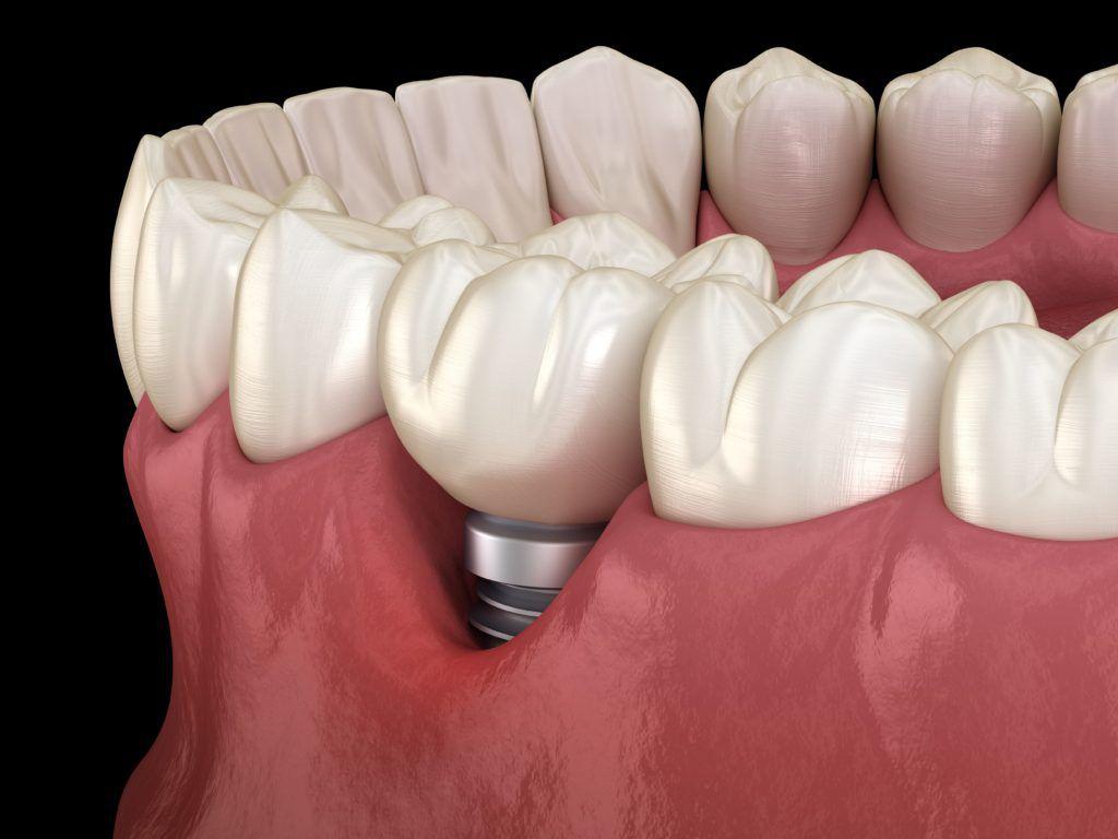 gum recession showing dental implant