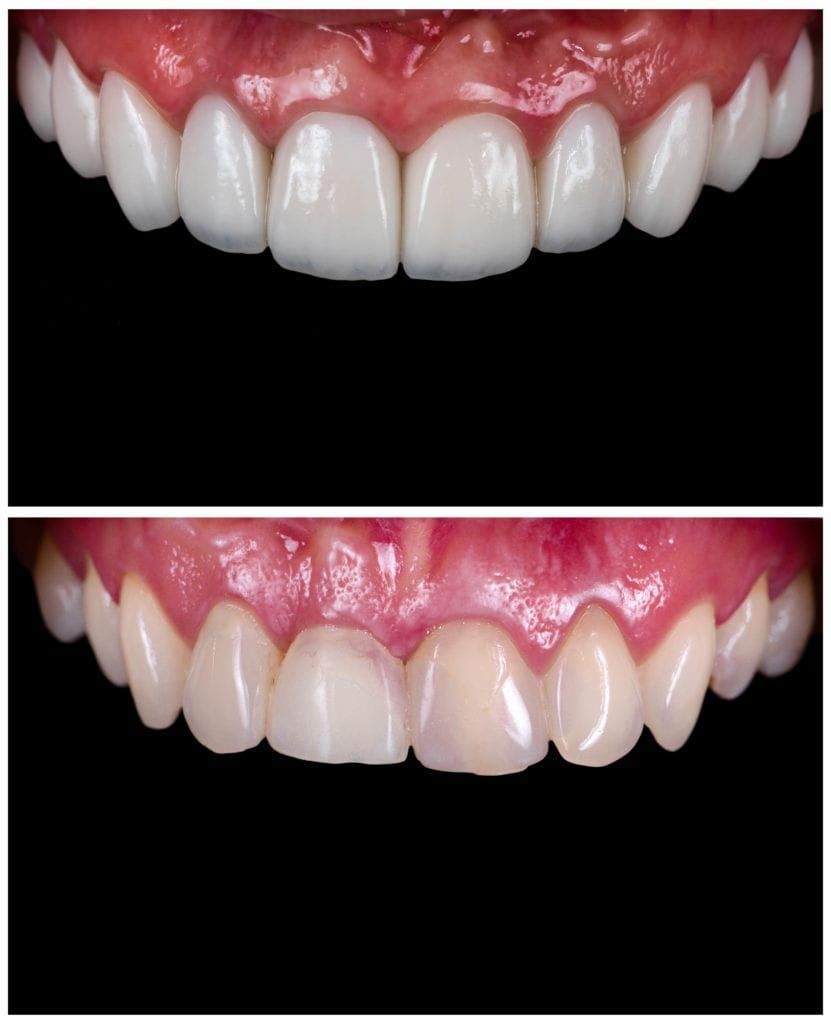 before and after enamel contouring