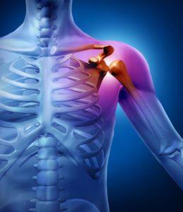 musculoskeletal sports