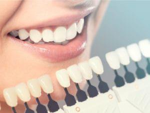 Dental shade guide