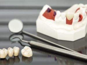 Dental Crown and Bridge Model