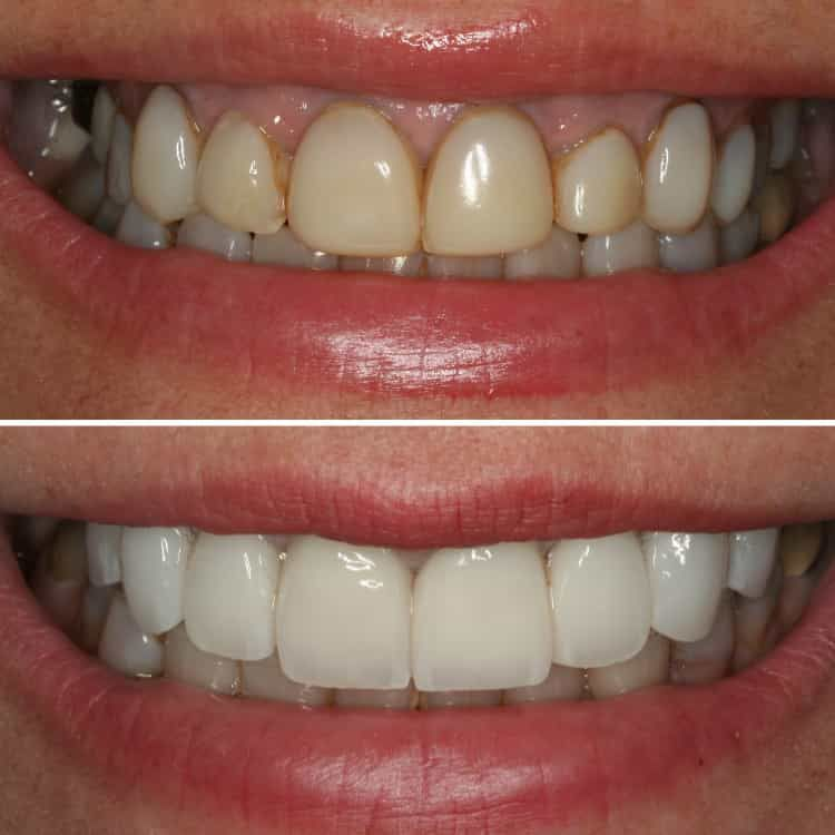 Gum lift and 8 Porcelain Veneers