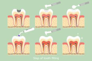 dental filling steps diagram