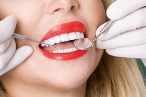dental exam for veneers