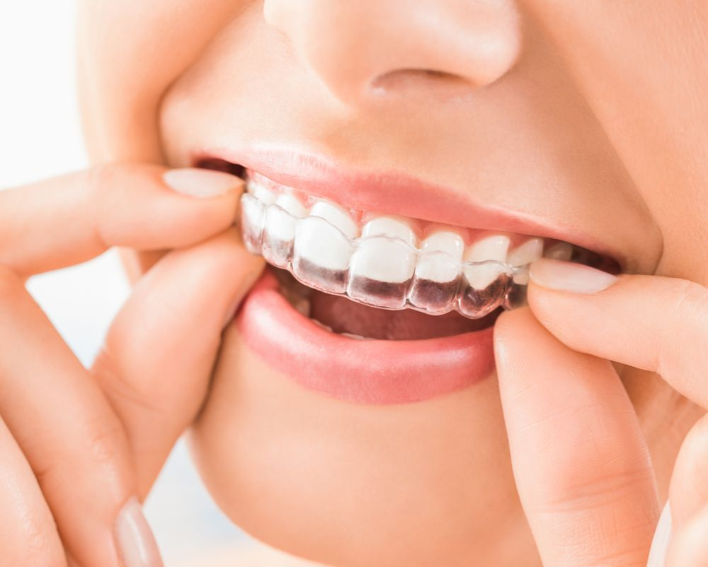 close up of putting on clear aligners