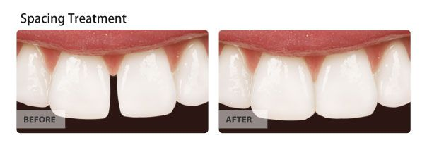 orthodontic spacing treatment before and after