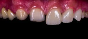 veneer tooth before and after